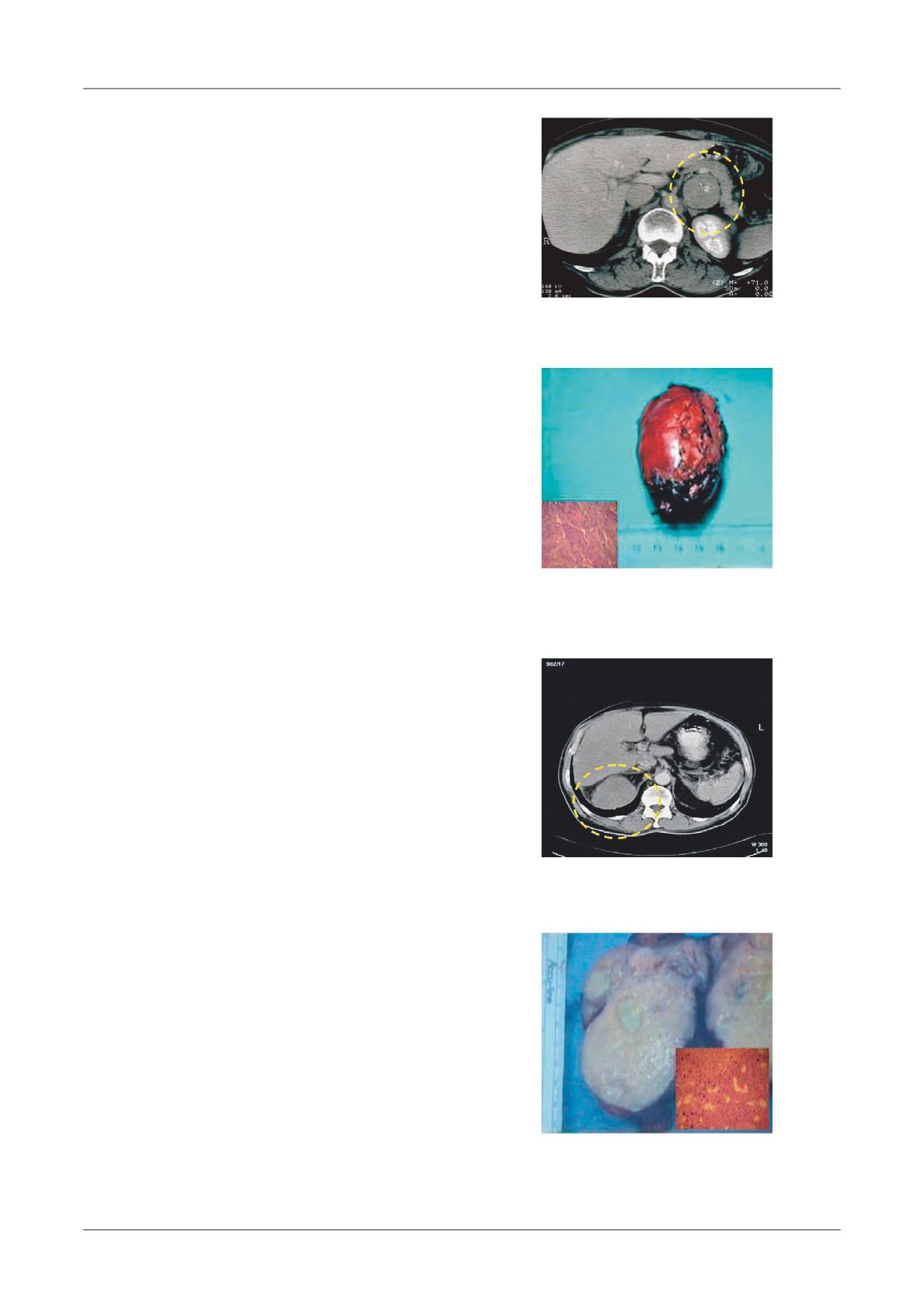 dermatita seboreica scalp tratament psoriazis cu oua