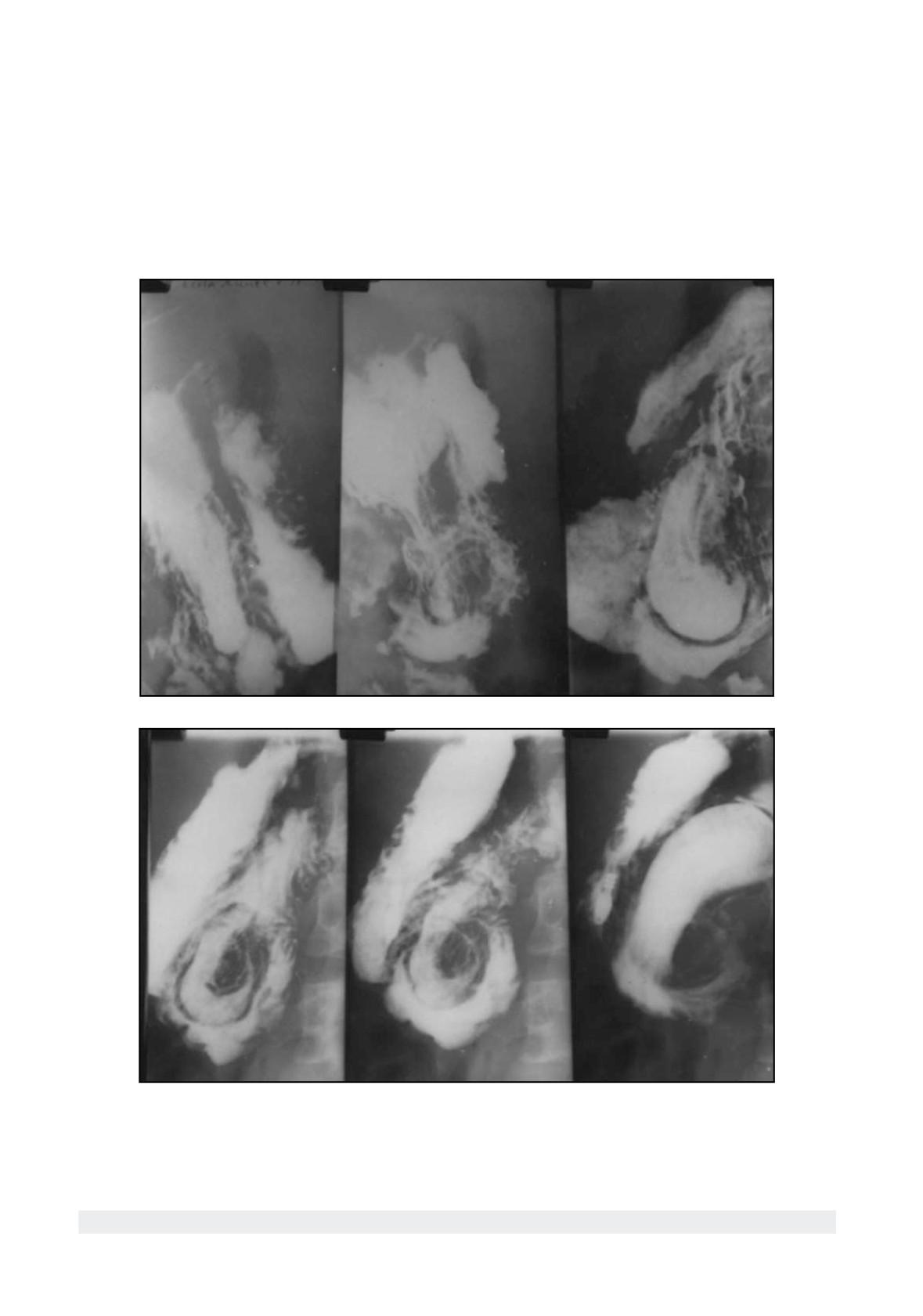 vizualizare internă varicoasă a fotografiei mici pelvis)
